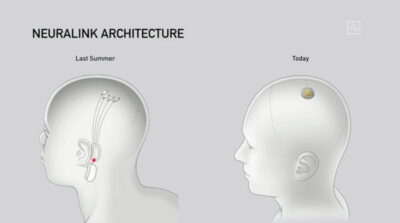 Elon Musk's Neuralink Device demo on Friday